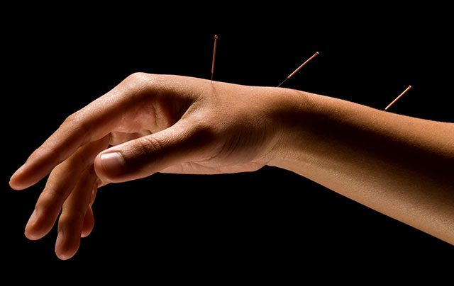 The Many Uses of Acupuncture